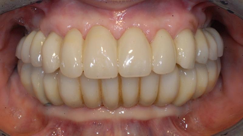 Prima - parodontite - Studi Mezzena Centro di Riabilitazione Odontoiatrica a Concesio (BS) - Orzinuovi (BS) - Pessano (MI) - Treviglio (BG) - parodontite - Studi Mezzena Centro di Riabilitazione Odontoiatrica a Concesio (BS) - Orzinuovi (BS) - Pessano (MI) - Treviglio (BG)
