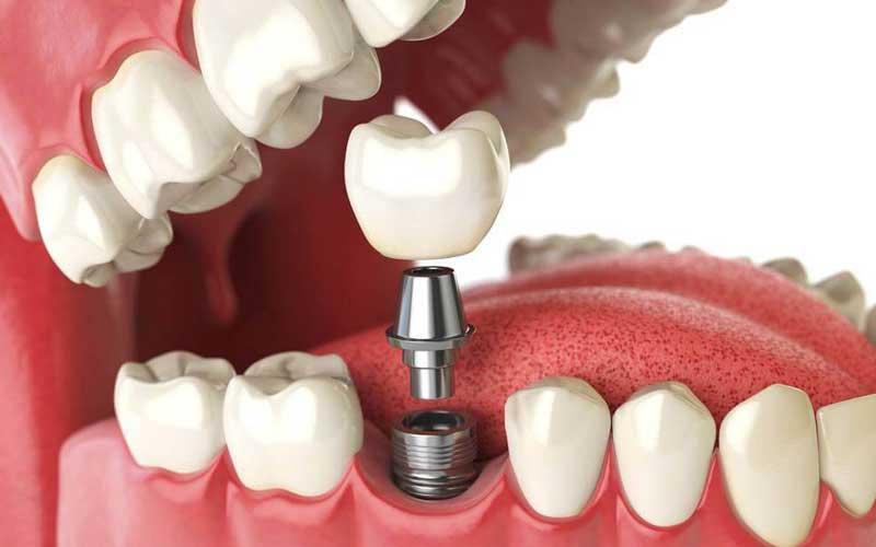impianto singolo - implantologia - Studi Mezzena Centro di Riabilitazione Odontoiatrica a Concesio (BS) - Orzinuovi (BS) - Pessano (MI) - Treviglio (BG)