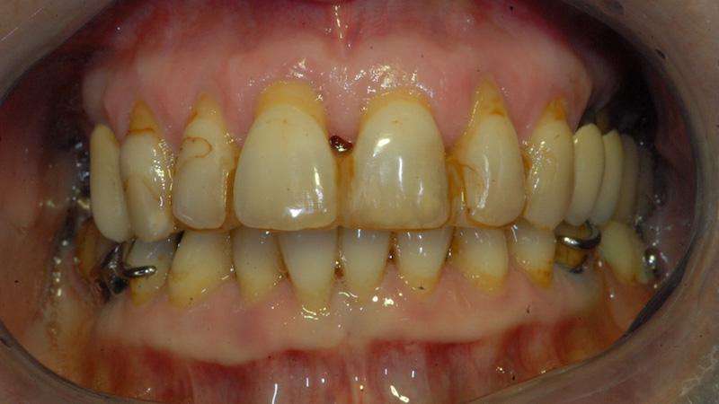 Prima - parodontite - Studi Mezzena Centro di Riabilitazione Odontoiatrica a Concesio (BS) - Orzinuovi (BS) - Pessano (MI) - Treviglio (BG)