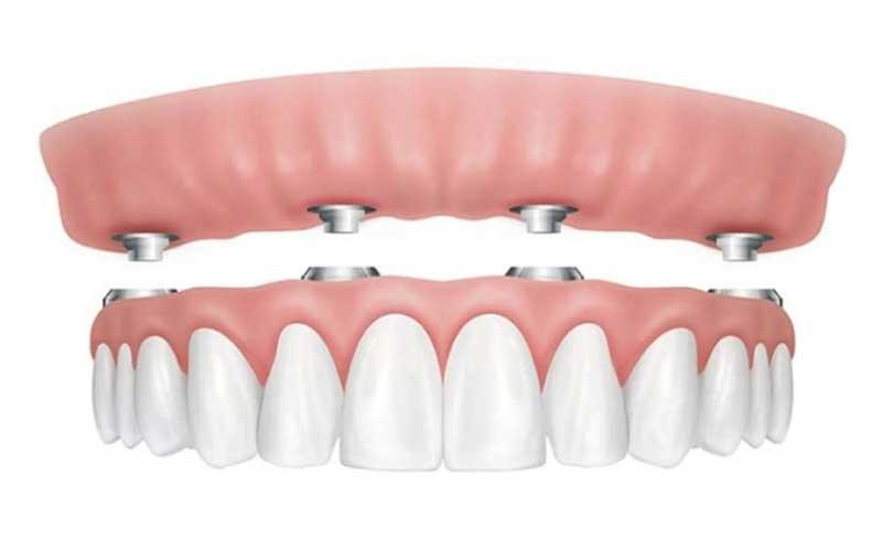 implantologia 4 impianti toronto bridge - all on four - Studi Mezzena Centro di Riabilitazione Odontoiatrica a Concesio (BS) - Orzinuovi (BS) - Pessano (MI) - Treviglio (BG)