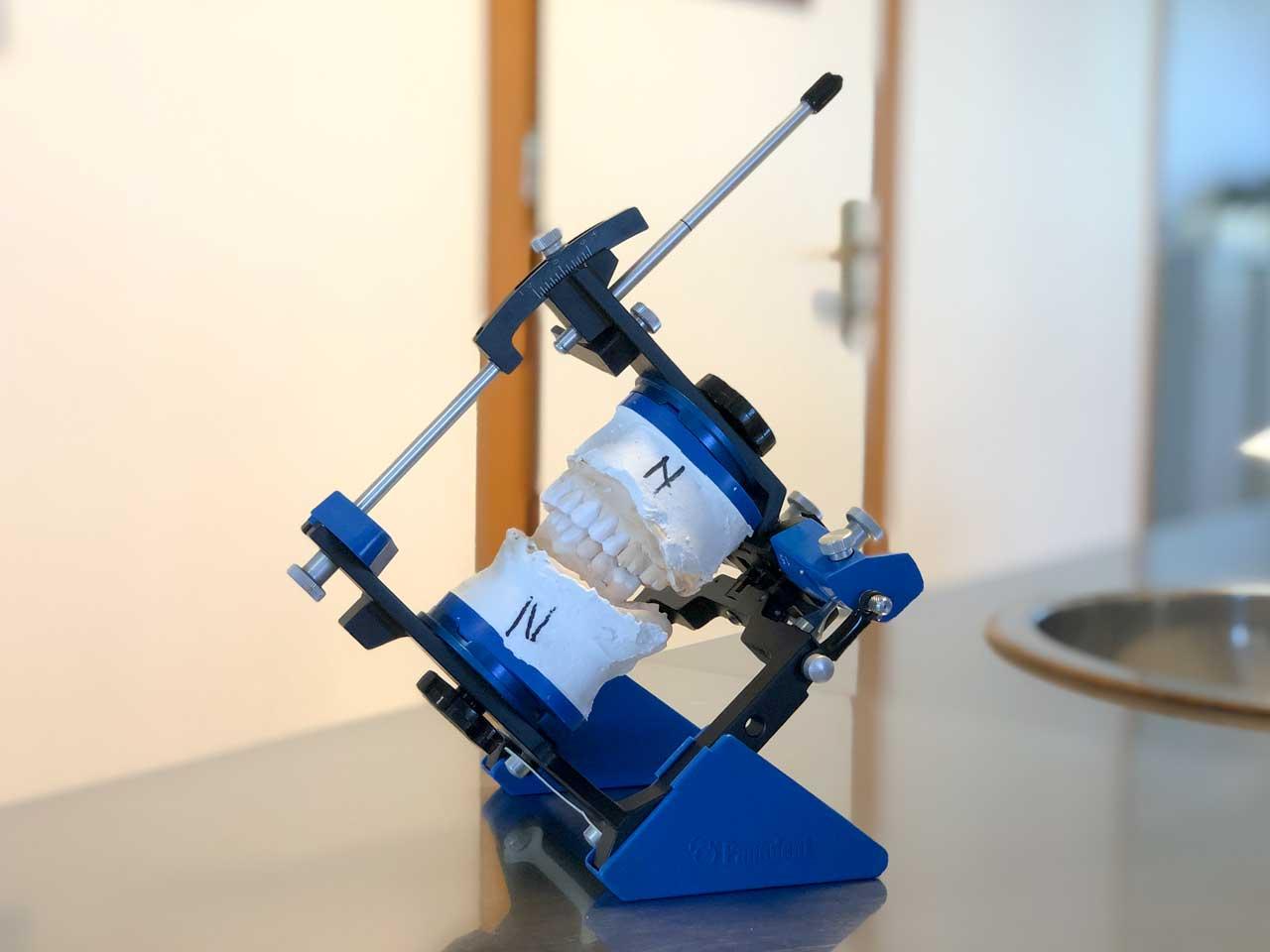 articolatore dentale | Implantologia Brescia