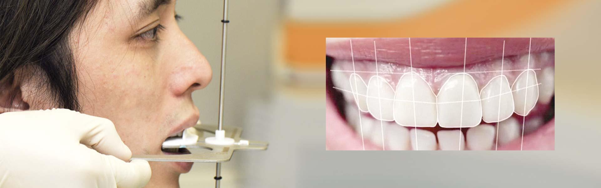 analizzatore Dento-facciale - Studi Mezzena Centro di Riabilitazione Odontoiatrica a Concesio (BS) - Orzinuovi (BS) - Pessano (MI) - Treviglio (BG)