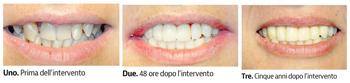 implantologia dentale in 48 ore