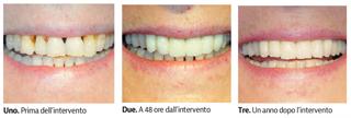 Studi Mezzena - Dentisti Brescia, Milano, Bergamo