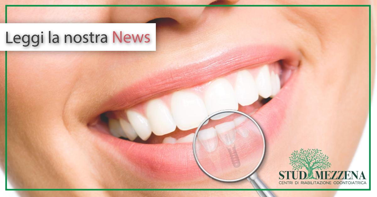 Impianto dentale fa male?
