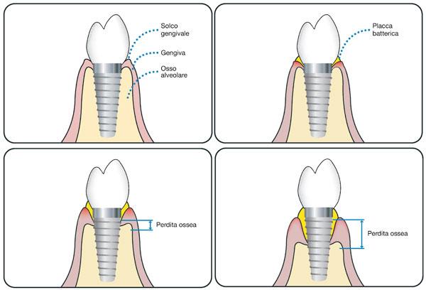 cura perimplantite | dentista brescia