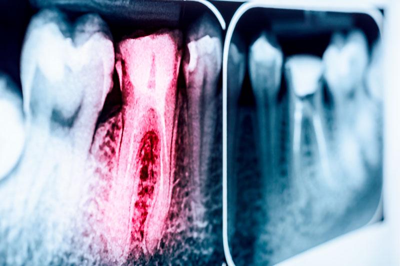 dolore-ai-denti-01