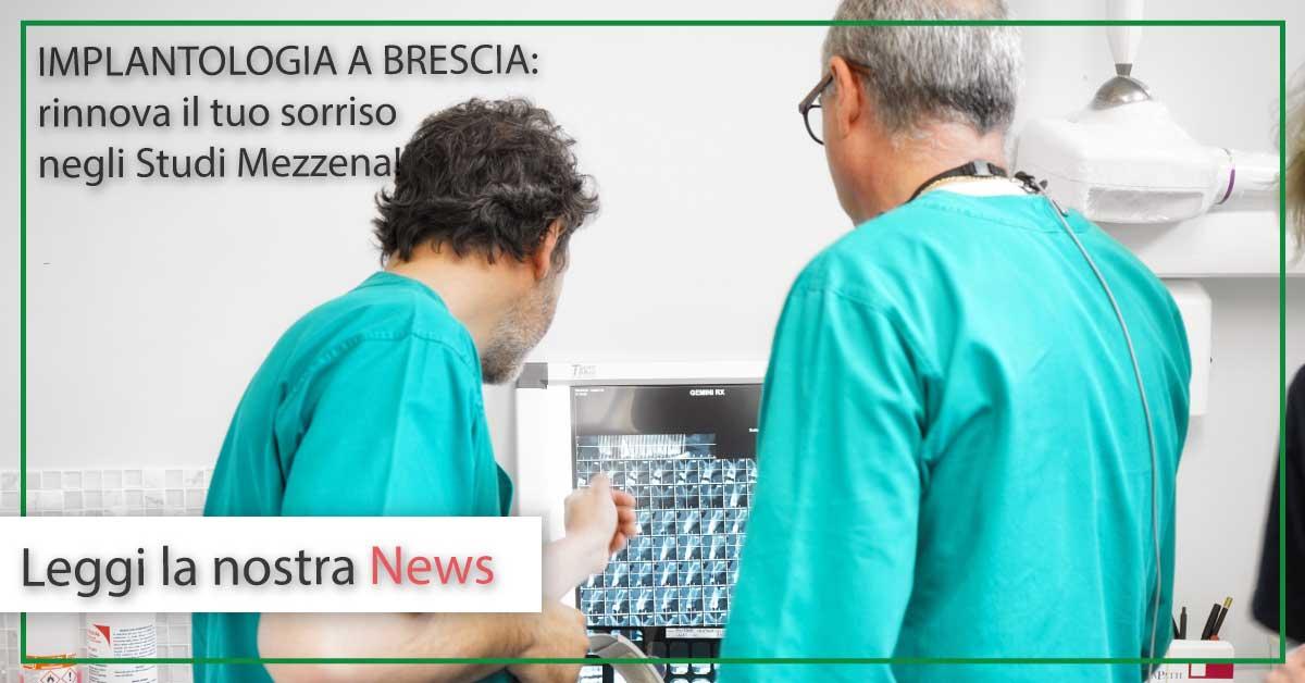 Implantologia a Brescia | Studi Mezzena | Dentista a Brescia