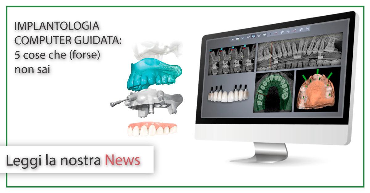 implantologia computer guidata | Studi Mezzena | Dentista a Brescia