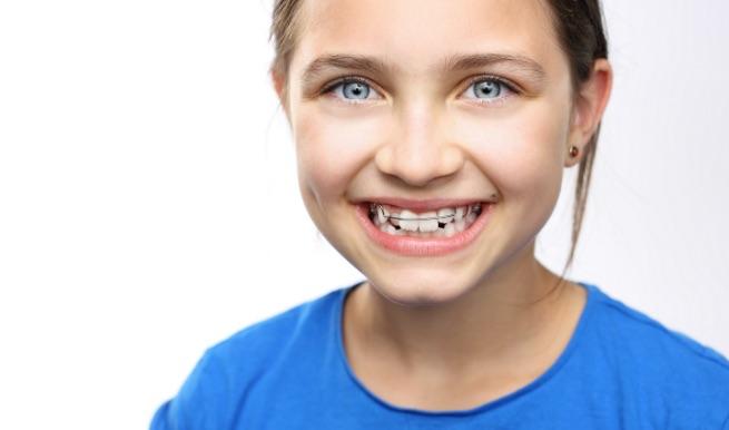 Apparecchio ortodontico | Studi Mezzena | Dentista a Brescia