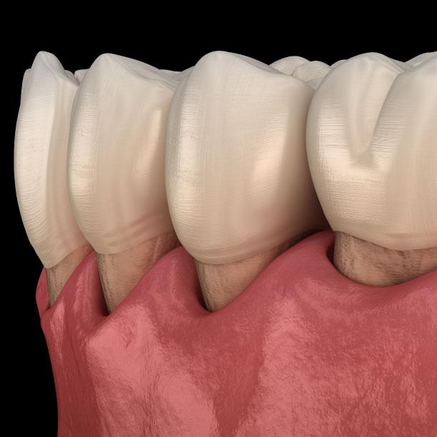 Parodontite e sintomi   Studi Mezzena   Dentista a Brescia