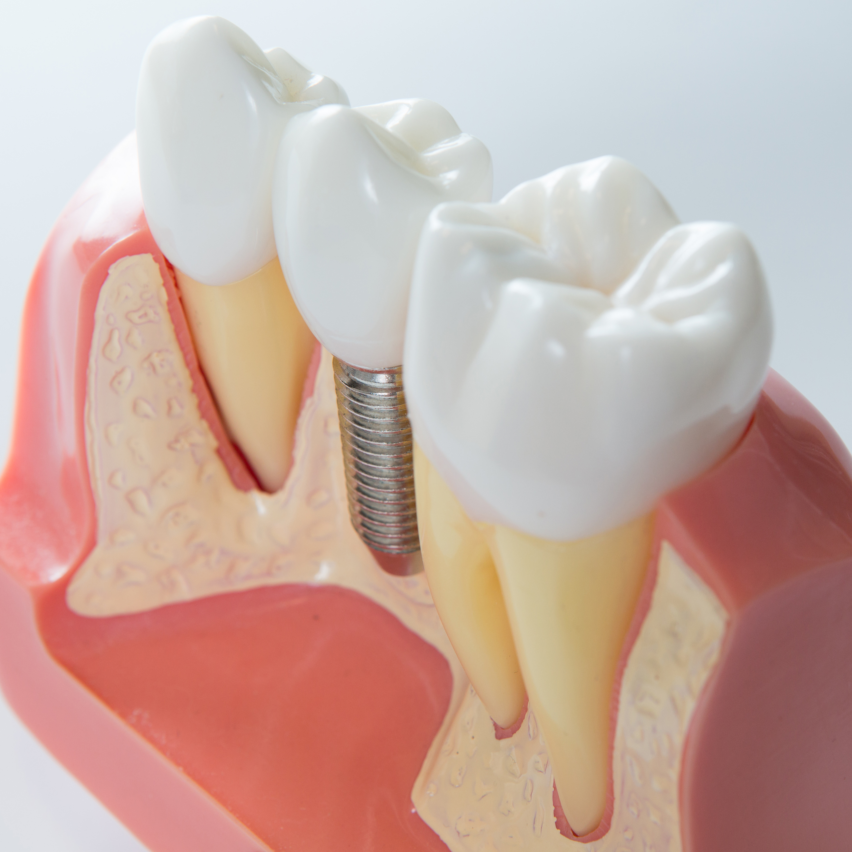 impianto dentale dolorante | Studi Mezzena